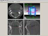 CTを有効活用した症例