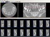 歯科用CT(3D)